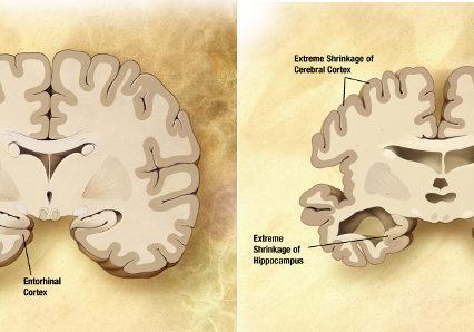 болезнь альцгеймера кетогенная диета